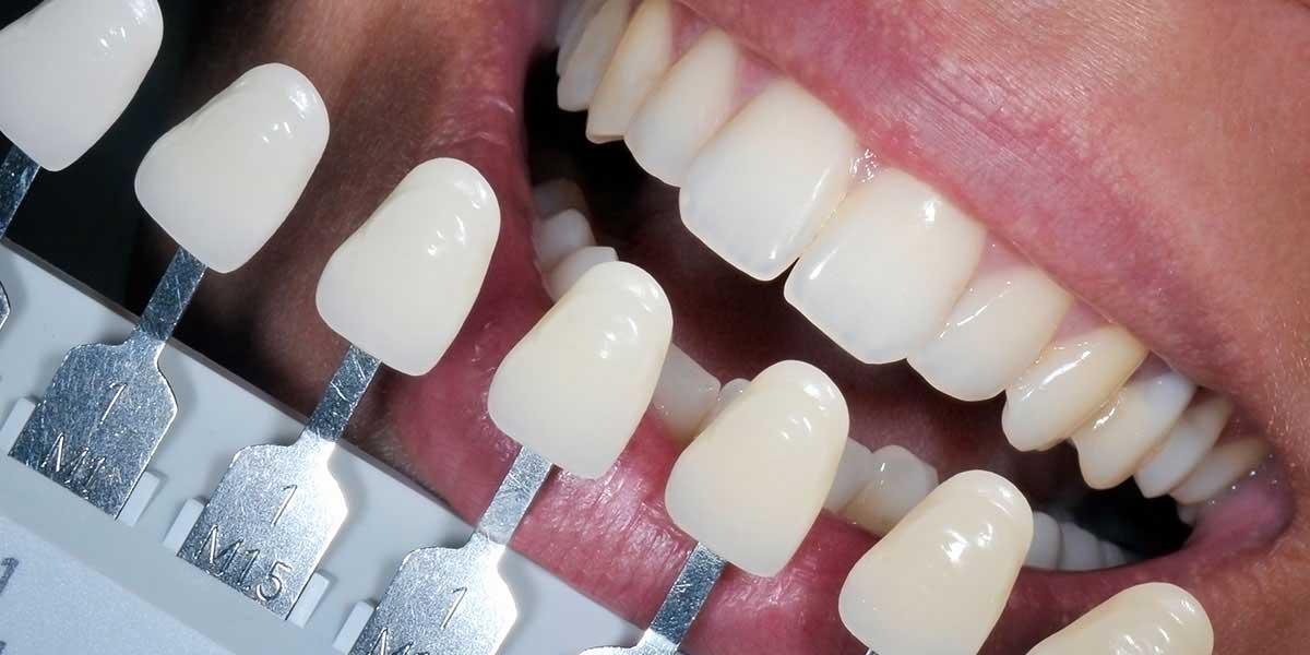 Dental Fillings | Dental Services | Keelan Dental | Dental